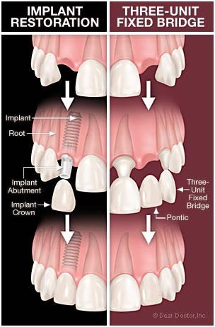 تعويض الأسنان بالتركيبات الثابتة والزراعة - مركز إيزي دنتل للأسنان