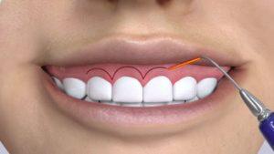 تجميل اللثة - مركز إيزي دنتل للأسنان