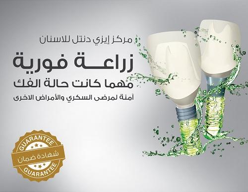 الزراعة الفورية - مركز ايزي دنتل للأسنان